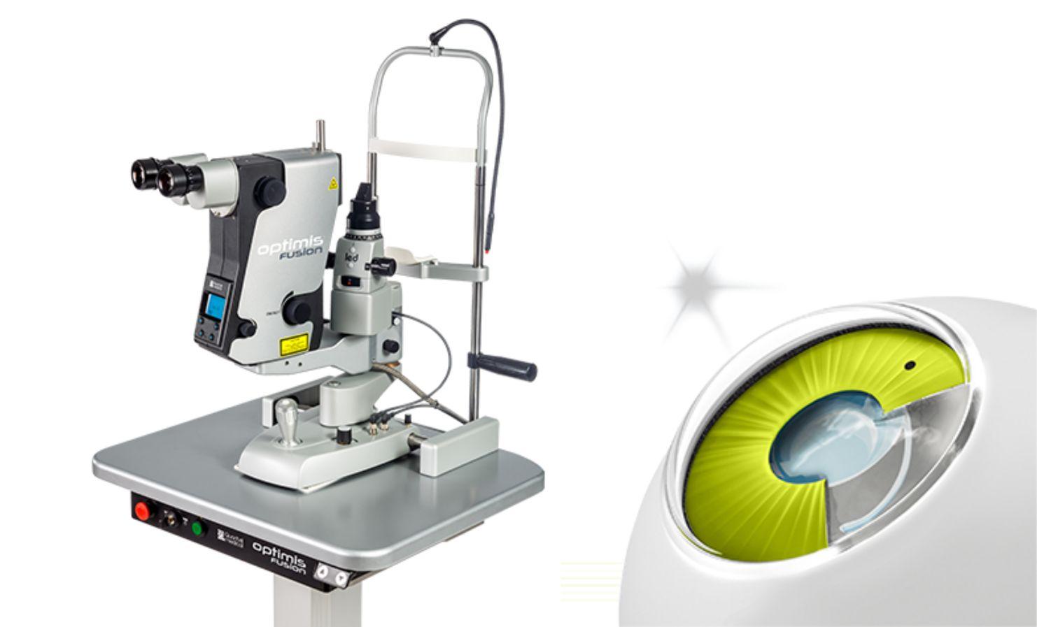 glaukomas ārstēšana ar SLT